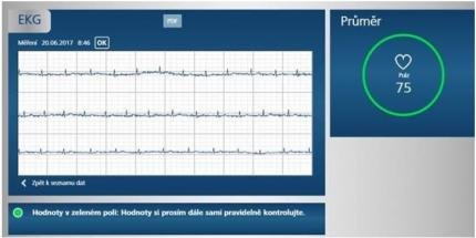 3499a4c1a Namerené hodnoty EKG v aplikaci medi.connect